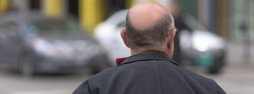 Greffe de cheveux à Paris