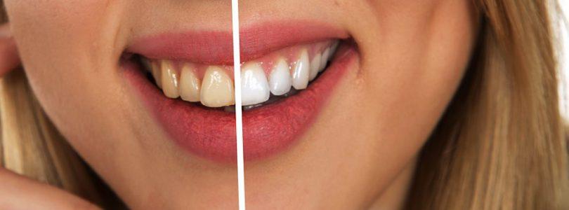 Avantages du charbon actif pour l'hygiène dentaire